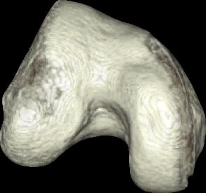 Dysplastic Trochlea